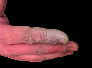 Hydrofluoric acid - A hydrofluoric acid burn of the hand