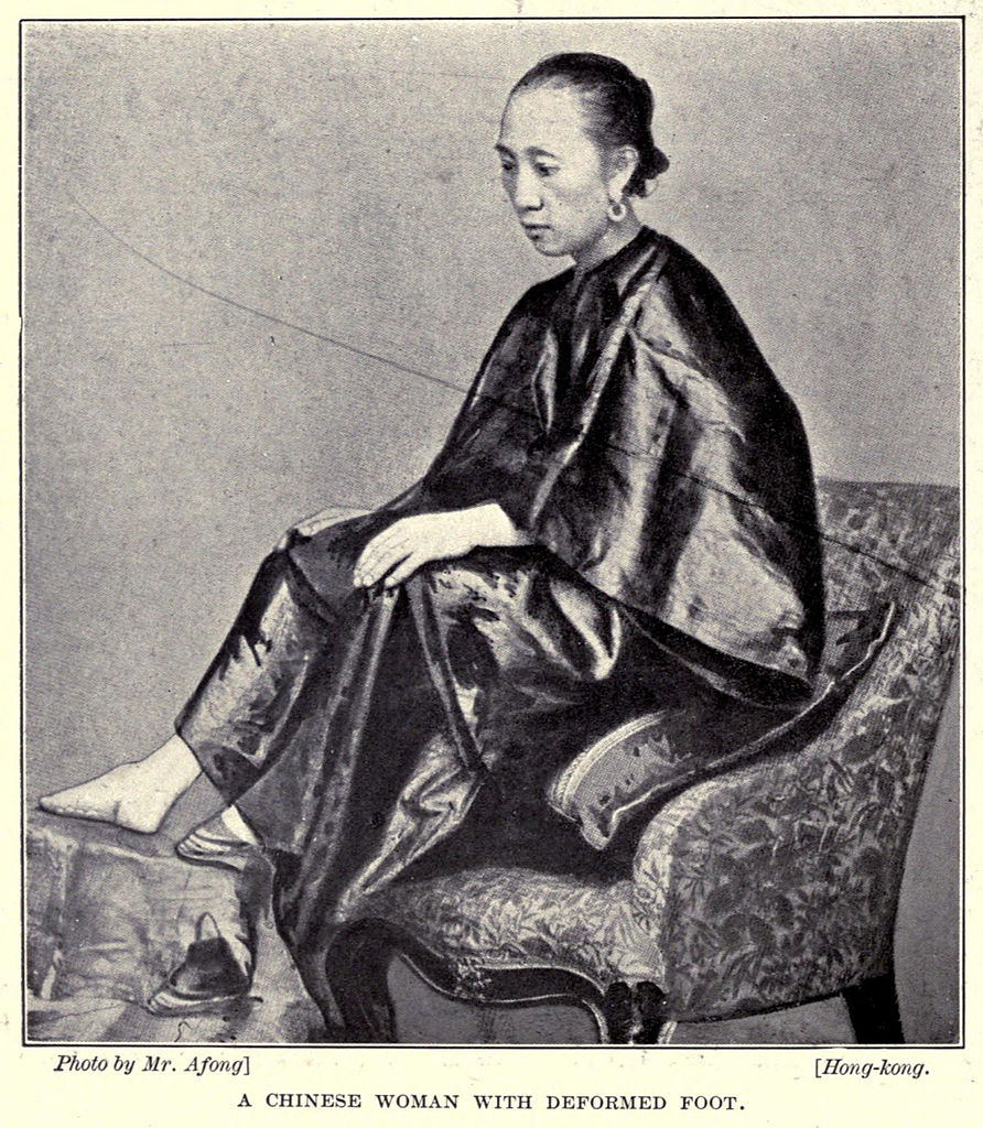 File:A Chinese Golden Lily Foot By Lai Afong C1870s Full