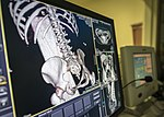 Analyzing bone structure 160127-F-JF989-116.jpg