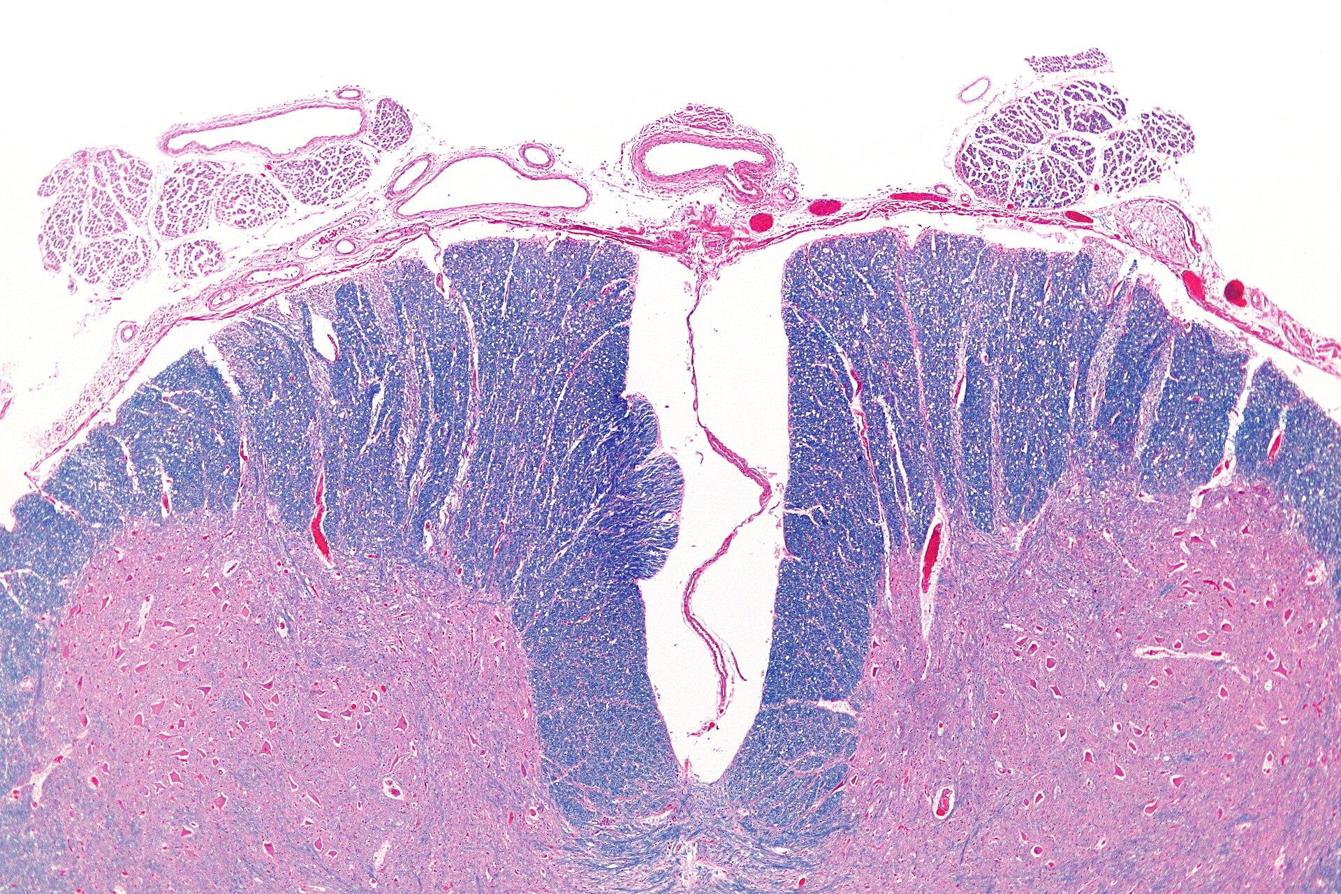 Anterior spinal artery...
