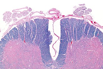 Anterior spinal artery - Micrograph showing an axial section of the anterior spinal cord and anterior spinal artery (top-middle of image). LFB-HE stain.