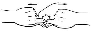 BDORT - Image: BDORT fig 2