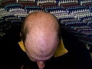 Bald head.jpg