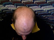 Topical application of progesterone to treat male pattern