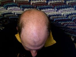 Alopecia androgenetica - Wikipedia 1cc51ed2487e