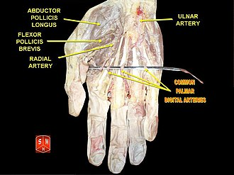 Common palmar digital arteries - Image: Common palmar digital arteries