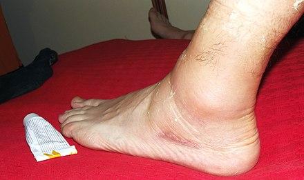 Distorsione alla caviglia trattata con una pomata a base di arnica.