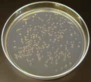E coli colonies on a plate of agar, an example of cellular cloning and often used in molecular cloning