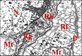Epithelium de la glande rostrale (chambre).jpg