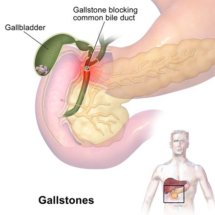 Gallstones typically form in the gallbladder and may present symptoms exiting it or when passing through the bile duct Gallstones.png