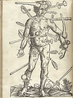 Wound Man - Wikipedia, the free encyclopedia