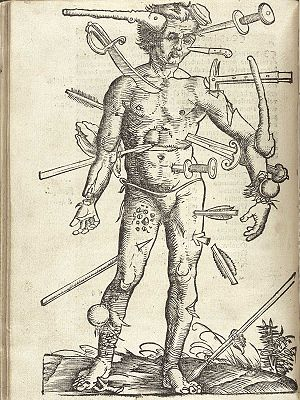 Battlefield medicine - An illustration showing a variety of wounds from the Feldbuch der Wundarznei (Field manual for the treatment of wounds) by Hans von Gersdorff, (1517); illustration by Hans Wechtlin.
