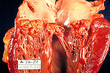 Extensive, large vegetations on mitral valve leaflets extending onto chordae tendinae.