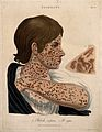 Head, neck and arm of a woman with a skin disease; and a pat Wellcome V0009664.jpg