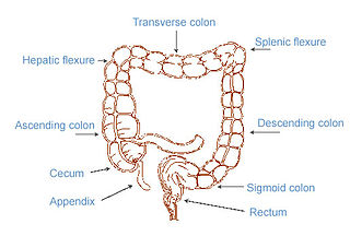 Neurogenic bowel dysfunction Human disease involving inability to control defecation