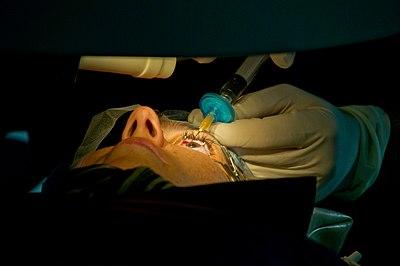 Lasik eye surgery.jpg