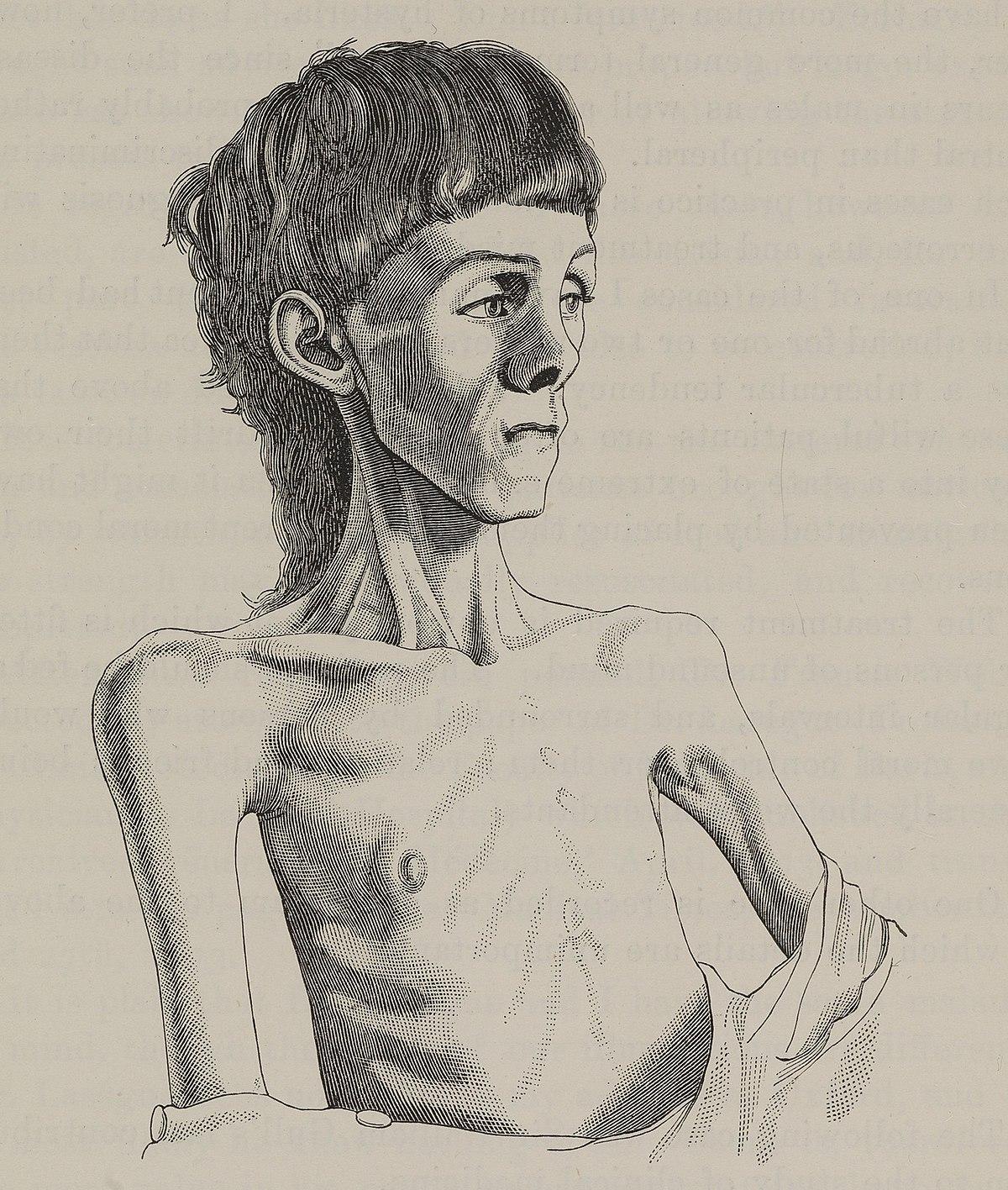 Eating disorder - Wikipedia