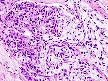histopatológica de un carcinoma mucoepidermoide..jpg