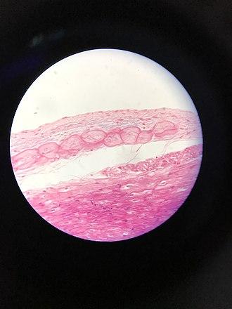 Purkinje fibers - Purkinje fibers just beneath the endocardium.