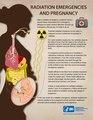 Radiation Emergencies and Pregnancy.pdf