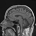 SCA Cerebellar Degeneration Sag T1.jpg