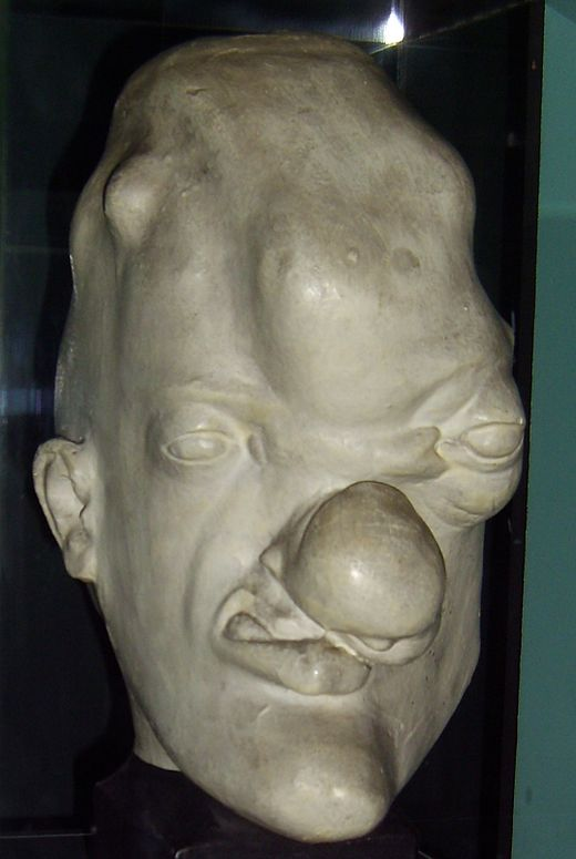 Model of a head of a person with tertiary (gummatous) syphilis, Musee de l'Homme, Paris. Tertiary syphilis head.JPG