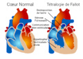 Tetralogy of Fallot.png