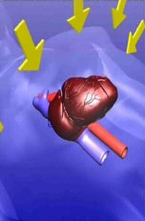 AutoPulse - Thoracic Pump - Compresses the entire chest