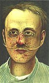 TuberousSclerosis-Kothe.jpg