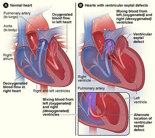 Congenital heart defect Defect in the structure of the heart that is present at birth