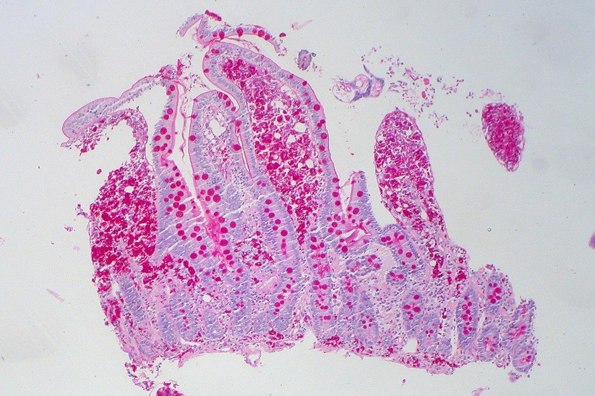 FileWhipples Disease, PAS 15.jpg   Wikimedia Commons