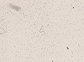 Wuchereria bancrofti (YPM IZ 093333).jpeg
