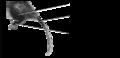 Z6. Hind limb hairs proximal (M01g).png