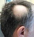 Alopecia areata 2.jpg