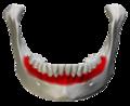 Alveolar part of mandible - close up- anterior view.png