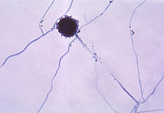 Aspergillus - Conidial head of Aspergillus niger