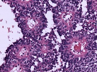 glial tumor derived from the astroblast, a type of cell that closely resembles spongioblastoma and astrocytes