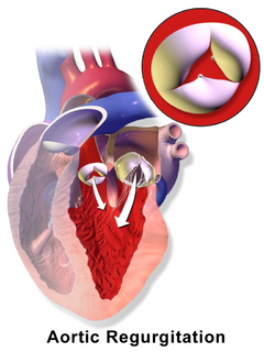 Aortic insufficiency aortic valve disease that is characterized by leaking of the aortic valve of the heart causes blood to flow in the reverse direction during ventricular diastole, from the aorta into the left ventricle