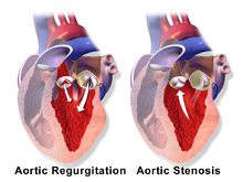 Chronic heart failure in the adult