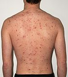 Chickenpox rash in an adult male
