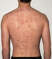 chickenpox and its epidemiology The epidemiology of chickenpox the epidemiology of chickenpox epidemiology can be defined as the study of health patterns and causes within a given population.
