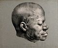 Death mask of Eustache, a slave from the Dominican republic Wellcome V0009514ER.jpg