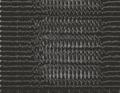 EEG Absence seizure.png