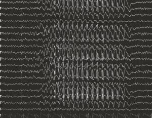 EEG in absence seizures