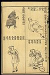 Early C20 Chinese Lithograph; 'Fan' diseases Wellcome L0039476.jpg