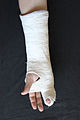 Hand in gips (Fifth Metacarpal Fracture) 3.jpg
