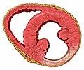 Heart inferior wall scar.jpg