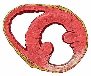 Myocardial scarring