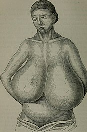 Hypertrophy of breast 2.jpg