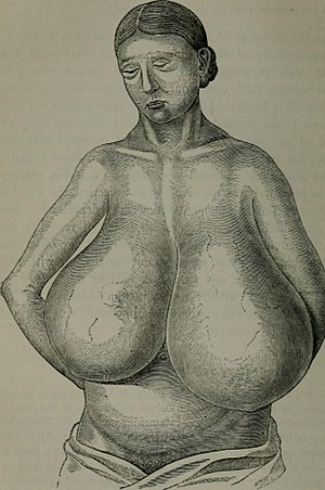Breast hypertrophy - Image: Hypertrophy of breast 2